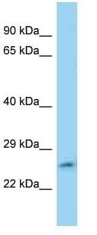 Western blot - Anti-FAM71C antibody (ab125394)