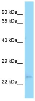 Western blot - Anti-OVCA2 antibody (ab125405)