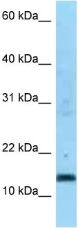 Western blot - Anti-SDHC antibody (ab125411)