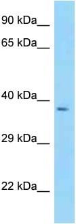 Western blot - Anti-PSCDBP antibody (ab125417)