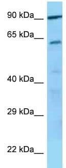 Western blot - CD42d antibody (ab125441)