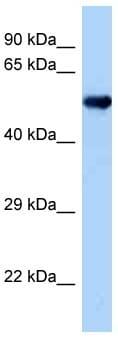 Western blot - Anti-OXSR1 antibody (ab125468)