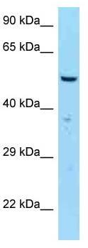 Western blot - Anti-SASS6 antibody (ab125511)