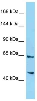Western blot - Anti-4732471D19Rik antibody (ab125521)