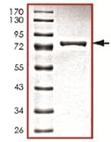 SDS-PAGE - Ret protein (Mutated V804 L) (Active) (ab125531)