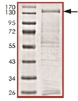 SDS-PAGE - PLK4 protein (Active) (ab125558)