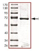 SDS-PAGE - PDK2 protein (Active) (ab125592)