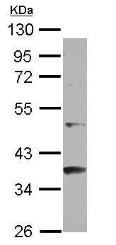 Western blot - Anti-GCNF antibody (ab125691)