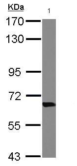 Western blot - Anti-Transketolase antibody (ab125706)