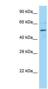 Western blot - Anti-DCTN4 antibody (ab125716)