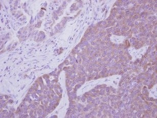 Immunohistochemistry (Formalin/PFA-fixed paraffin-embedded sections) - Anti-ARHGEF7 antibody (ab125870)