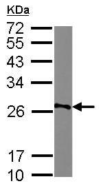 Western blot - Anti-AGPAT1 antibody (ab125874)