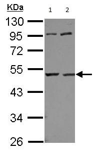 Western blot - Anti-UQCRC1 antibody (ab125882)