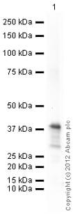Western blot - Anti-CTGF antibody (ab125943)
