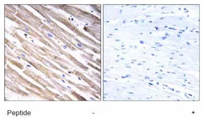 Immunohistochemistry (Formalin/PFA-fixed paraffin-embedded sections) - Anti-RPL3L antibody (ab129753)