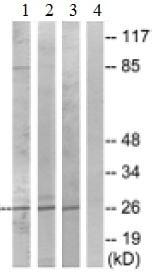 Western blot - Anti-PRSS33 antibody (ab129783)