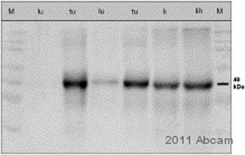 Western blot - Anti-Haptoglobin antibody [HG-36] (ab13429)