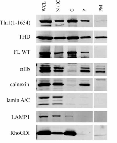 Western blot - Anti-LAMP1 antibody [LY1C6] - Lysosome Marker (ab13523)