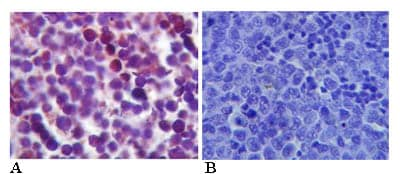 Immunohistochemistry (Formalin/PFA-fixed paraffin-embedded sections) - Anti-TLR4 antibody (ab13556)