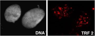 Immunocytochemistry/ Immunofluorescence - TRF2 antibody [4A794] (ab13579)