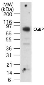 Western blot - CGBP antibody (ab13695)