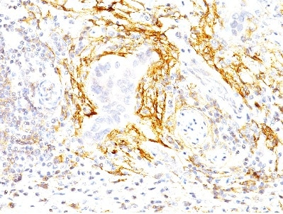 Immunohistochemistry (Formalin/PFA-fixed paraffin-embedded sections) - Anti-TEM8 antibody [200C1339 ] (ab13798)