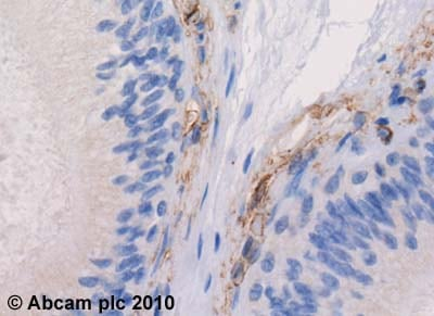 Immunohistochemistry (Formalin/PFA-fixed paraffin-embedded sections)-5HT1B Receptor antibody(ab13896)