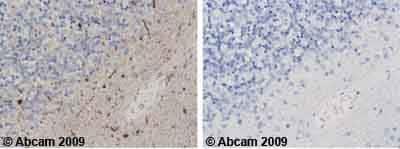 Immunohistochemistry (Formalin/PFA-fixed paraffin-embedded sections)-Fyn antibody(ab13955)