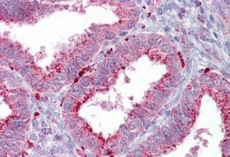 Immunohistochemistry (Formalin/PFA-fixed paraffin-embedded sections) - Anti-Axin 2 antibody (ab133223)