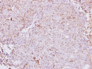 Immunohistochemistry (Formalin/PFA-fixed paraffin-embedded sections) - Anti-CETP antibody (ab137396)