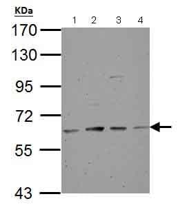 Western blot - Anti-Tyrosine Hydroxylase antibody (ab137721)