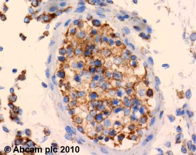 Immunohistochemistry (Formalin/PFA-fixed paraffin-embedded sections) - SDHA antibody [2E3] (ab14715)