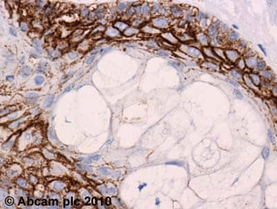 Immunohistochemistry (Formalin/PFA-fixed paraffin-embedded sections) - Claudin 1 antibody (ab15098)