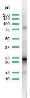 Western blot - D4 GDI antibody, prediluted (ab15199)