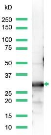 Western blot - 14-3-3 beta antibody (ab15260)
