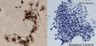 Immunocytochemistry - Anti-Amyloid Precursor Protein antibody (ab15272)