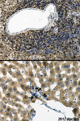 Immunohistochemistry (Formalin/PFA-fixed paraffin-embedded sections) - Anti-iNOS antibody (ab15323)