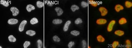 Immunocytochemistry/ Immunofluorescence - Anti-FANCI antibody (ab15344)