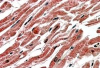 Immunohistochemistry (Formalin/PFA-fixed paraffin-embedded sections) - CPT1B antibody (ab15703)