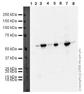 Western blot - Parkin antibody (ab15954)