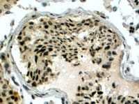 Immunohistochemistry (Formalin/PFA-fixed paraffin-embedded sections) - Anti-RAD51AP1 antibody (ab15957)