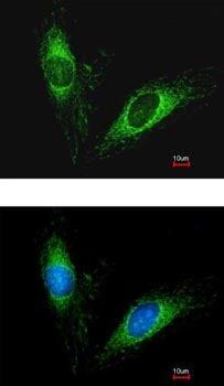 Immunocytochemistry/ Immunofluorescence - Anti-Protein C inhibitor antibody (ab154275)
