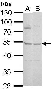 Western blot - Anti-Protein C inhibitor antibody (ab154275)