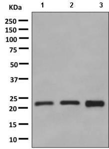 Western blot - Anti-Rab24 antibody [EPR9131] (ab154824)
