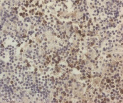 Immunohistochemistry (Formalin/PFA-fixed paraffin-embedded sections) - CD3 antibody (ab16044)