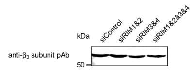 Western blot - CACNB3 antibody (ab16717)