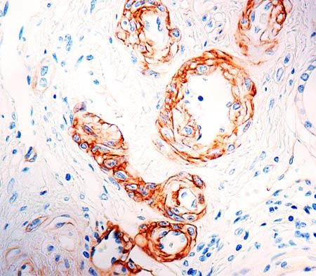 Immunohistochemistry (Formalin/PFA-fixed paraffin-embedded sections) - Anti-Laminin alpha 5 antibody [4C7] (ab17107)