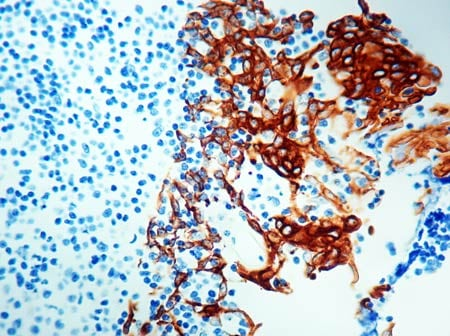 Immunohistochemistry (Formalin/PFA-fixed paraffin-embedded sections) - Anti-pan Cytokeratin antibody [5D3 + LP34] (ab17153)