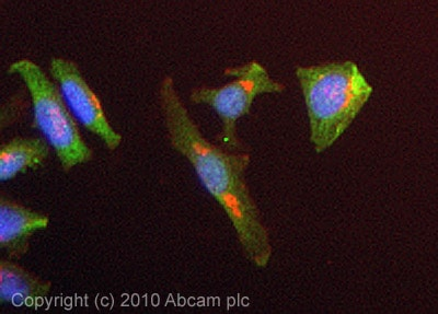 Immunocytochemistry/ Immunofluorescence-SMC4 antibody - ChIP Grade(ab17958)