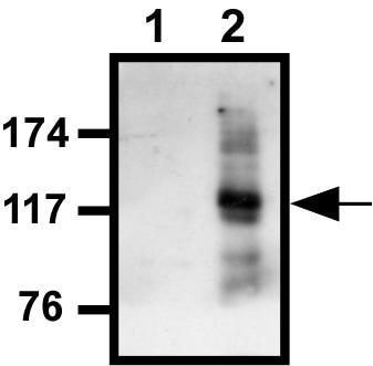 Western blot - Calcium Sensing Receptor antibody (ab18200)
